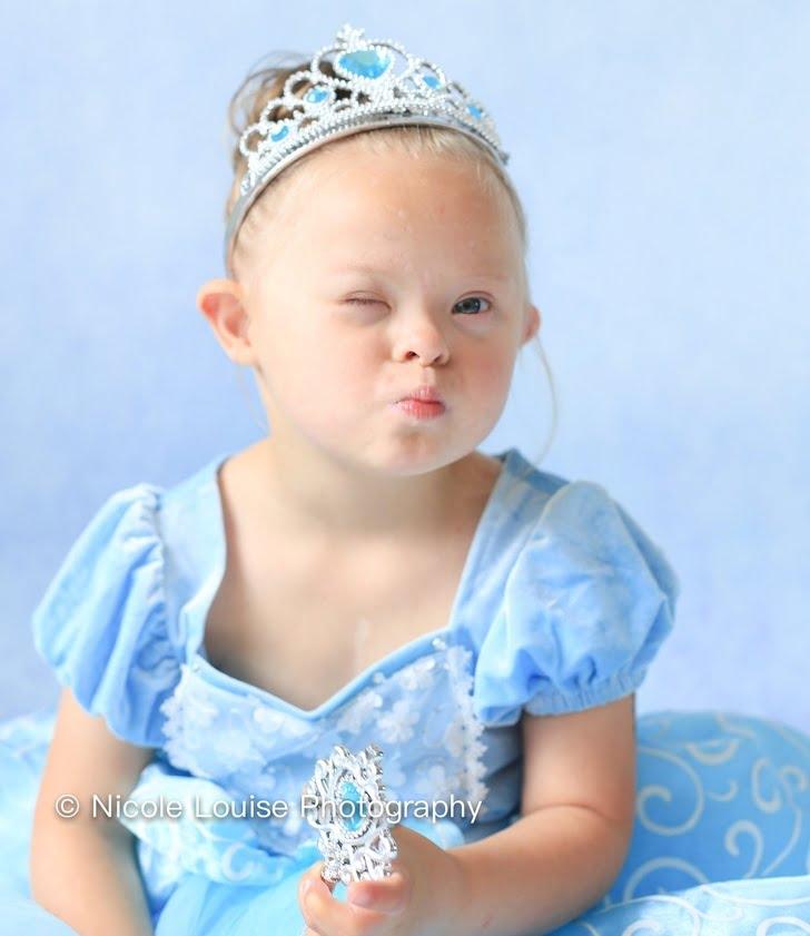 Bikin Haru, 10 Potret Anak Penderita Down Syndrom Pakai Kostum Disney Favorit